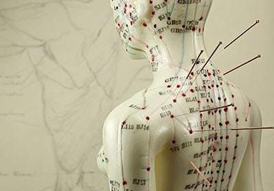 ourchiro treatment acupuncture techniques in brisbane chiropractor and musculoskeletal