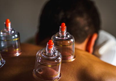 cupping treatment techniques ourchiro brisbane chirapractor and musculoskeletal brisbane